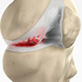 Knee Arthritis Management