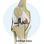 Knee Cartilage Injury