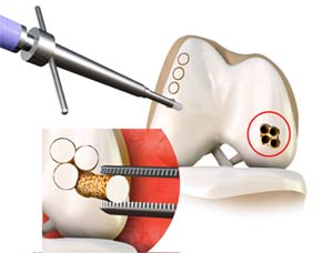 Osteochondral Autograft Transfer System Cincinnati Oats