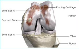 knee with advanced osteoarthritis